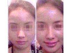 注射美容整形培训公司:【亲情推荐】上海市专业的注射美容整形培训